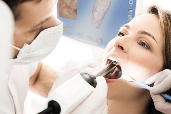 歯を削った後、口腔内を3D光学カメラで撮影、または歯形をとり作成いたします。)